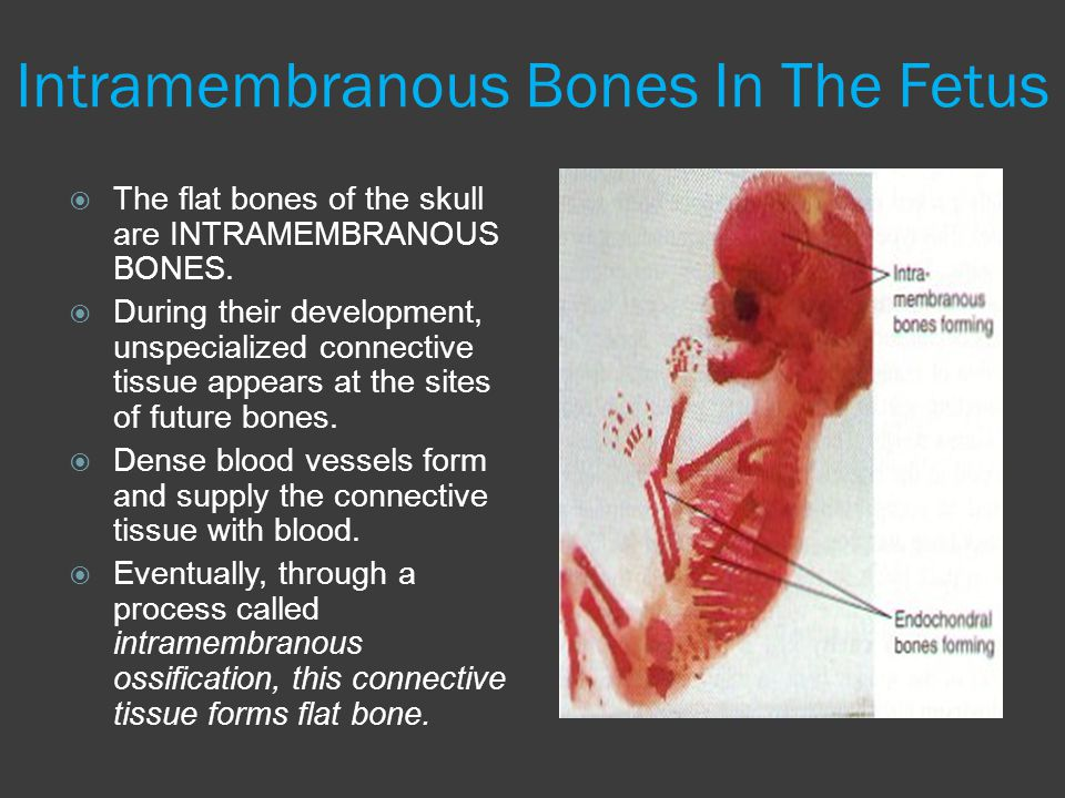 Intramembranous Bones In The Fetus