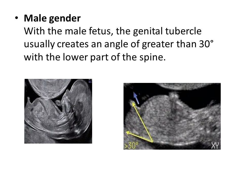 Male gender With the male fetus, the genital tubercle usually creates an angle of greater than 30° with the lower part of the spine.