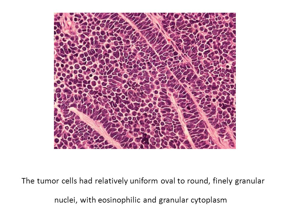 The tumor cells had relatively uniform oval to round, finely granular nuclei, with eosinophilic and granular cytoplasm