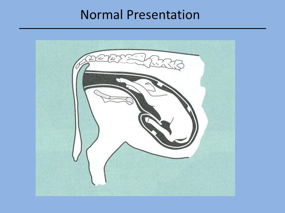 Normal Presentation