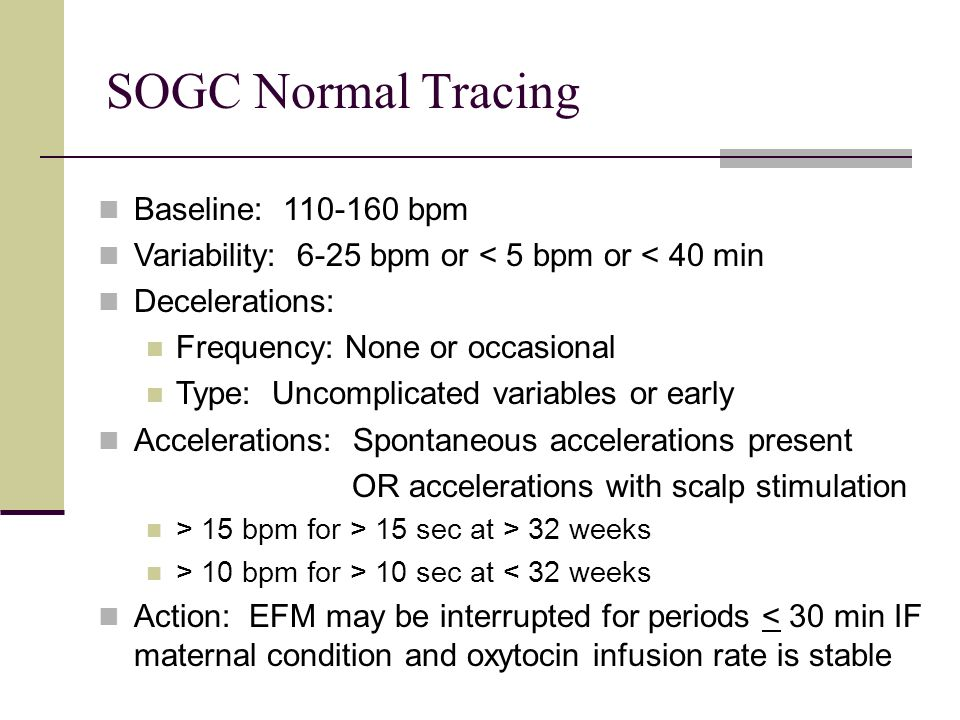 SOGC Normal Tracing Baseline: 110-160 bpm