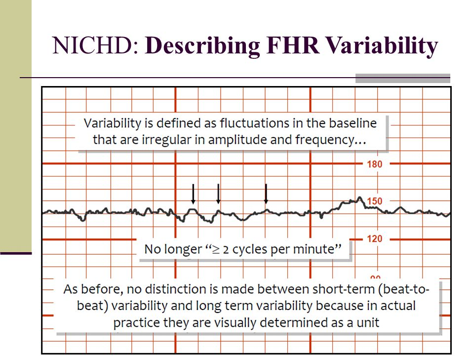 NICHD: Describing FHR Variability
