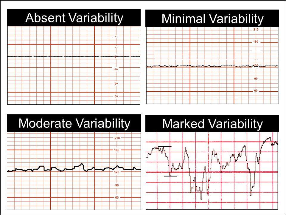 Absent Variability Minimal Variability Moderate Variability Marked Variability