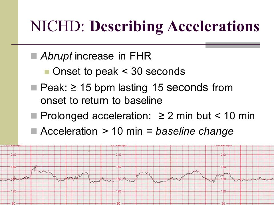 NICHD: Describing Accelerations