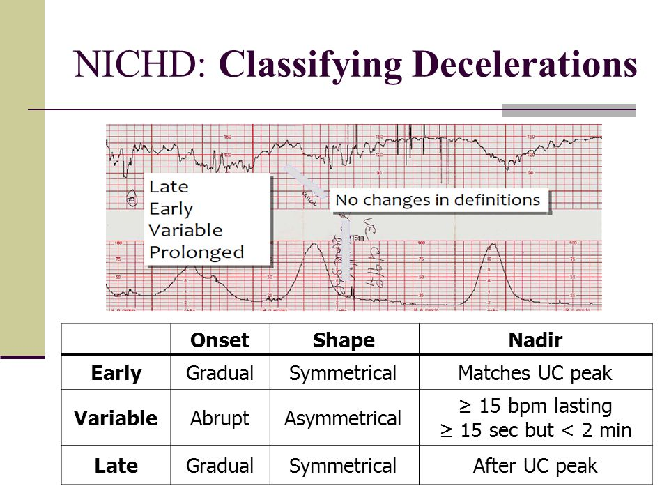NICHD: Classifying Decelerations