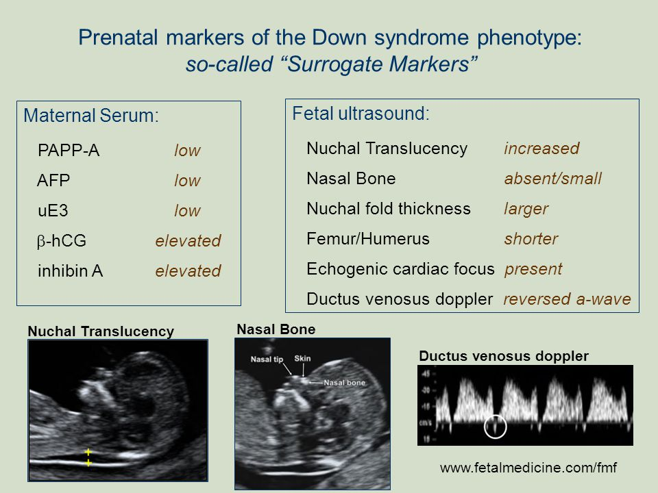 Prenatal markers of the Down syndrome phenotype: