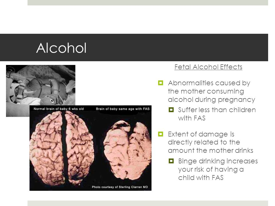 Alcohol Fetal Alcohol Effects