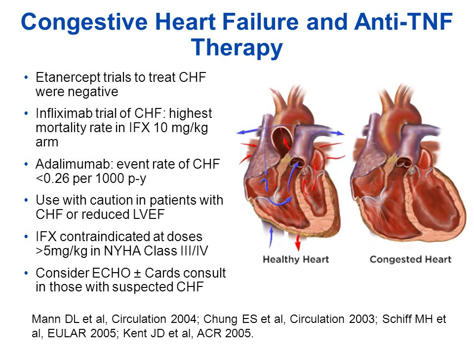 Congestive Heart Failure and Anti-TNF Therapy