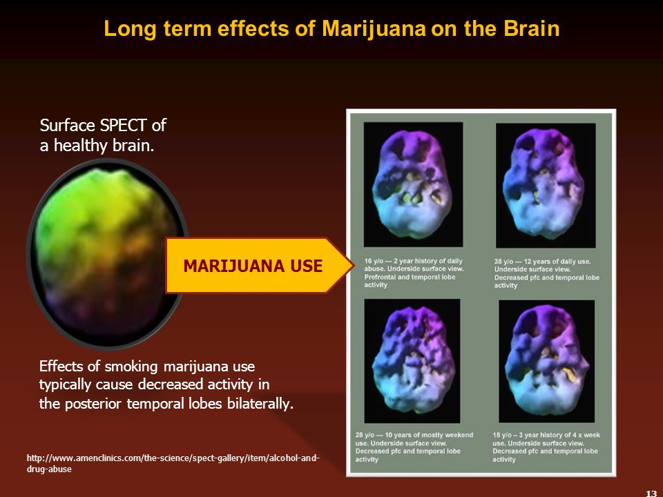 claims of marijuana long term effects on the brain Thc connects with a receptor on nerve cells in the brain the marijuana   people also might notice other short-term side effects of using marijuana, such as .