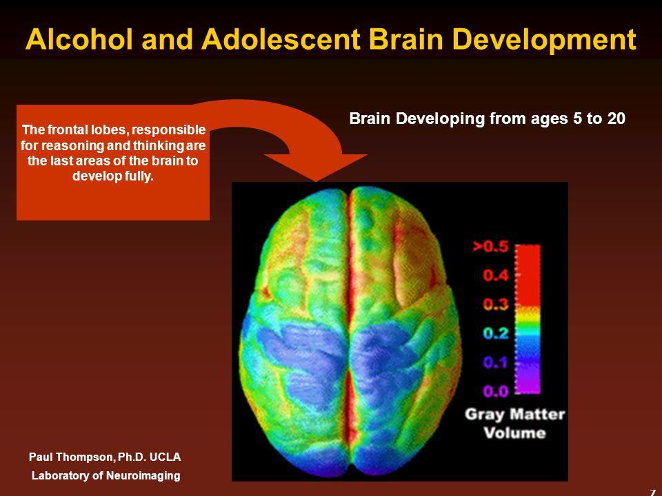 Alcohol and Adolescent Brain Development