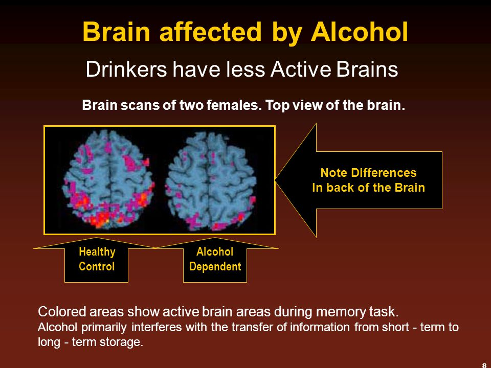 Brain affected by Alcohol