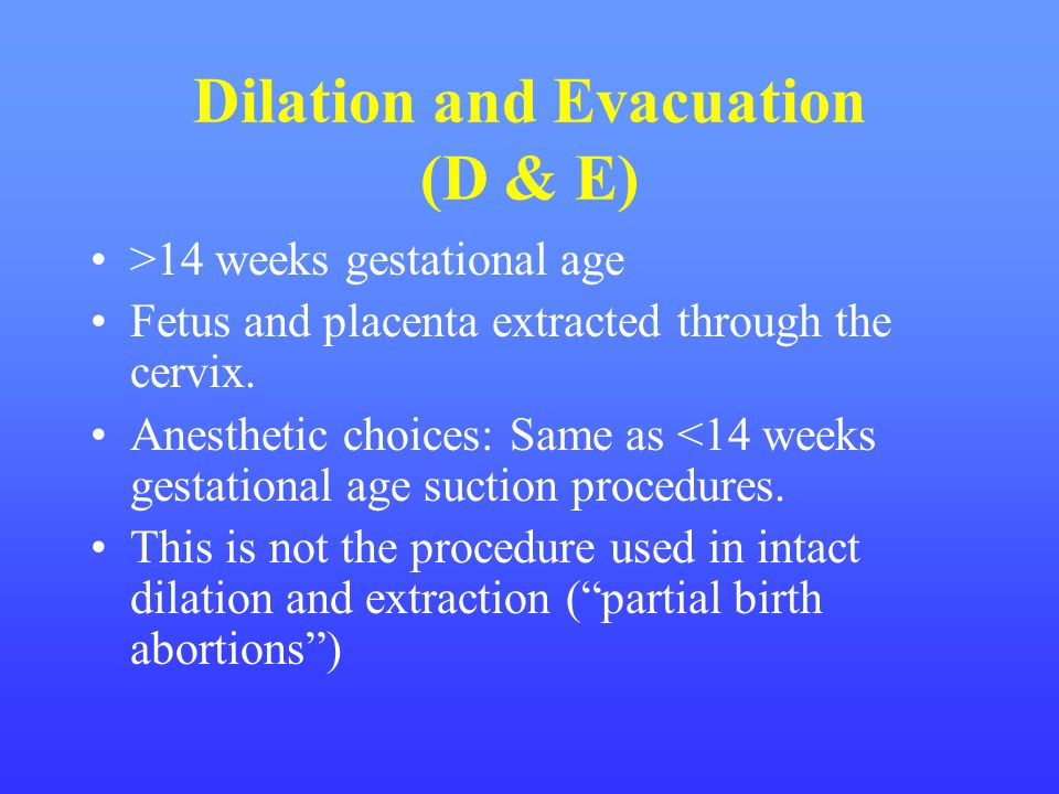 Dilation and Evacuation (D & E)