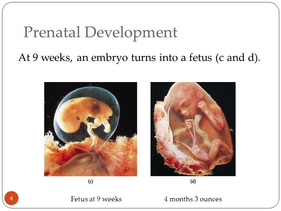 At 9 weeks, an embryo turns into a fetus (c and d).