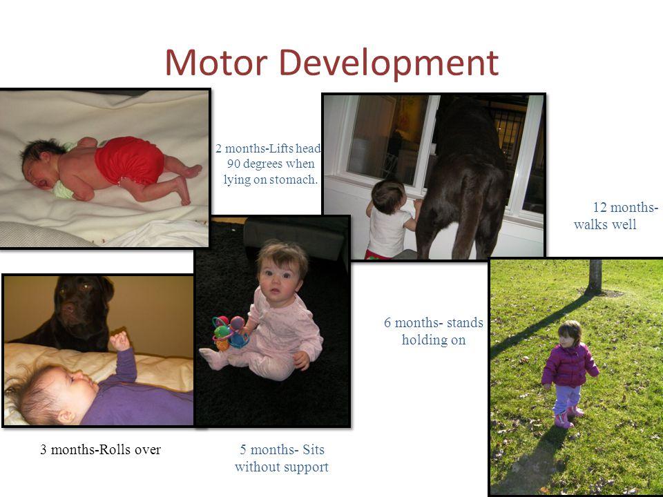 Motor Development 12 months- walks well 6 months- stands holding on