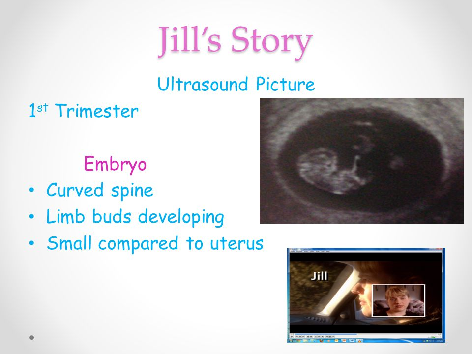 Jill's Story Ultrasound Picture 1st Trimester Embryo Curved spine