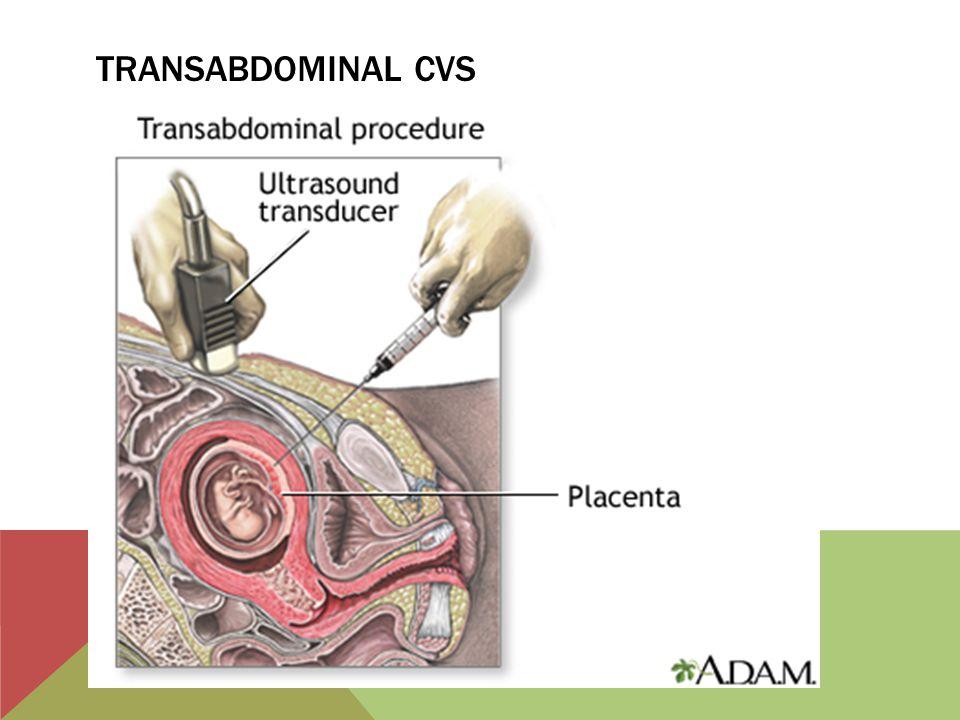 Transabdominal CVS