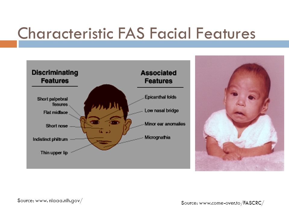Characteristic FAS Facial Features