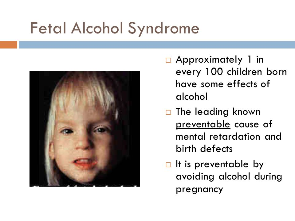 fetal alcohol synodrome Fetal alcohol syndrome is preventable but not treatable if you're worried about alcoholic tendencies during pregnancy, call us immediately: (888) 201-0270.