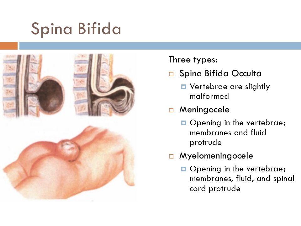 Spina Bifida Three types: Spina Bifida Occulta Meningocele