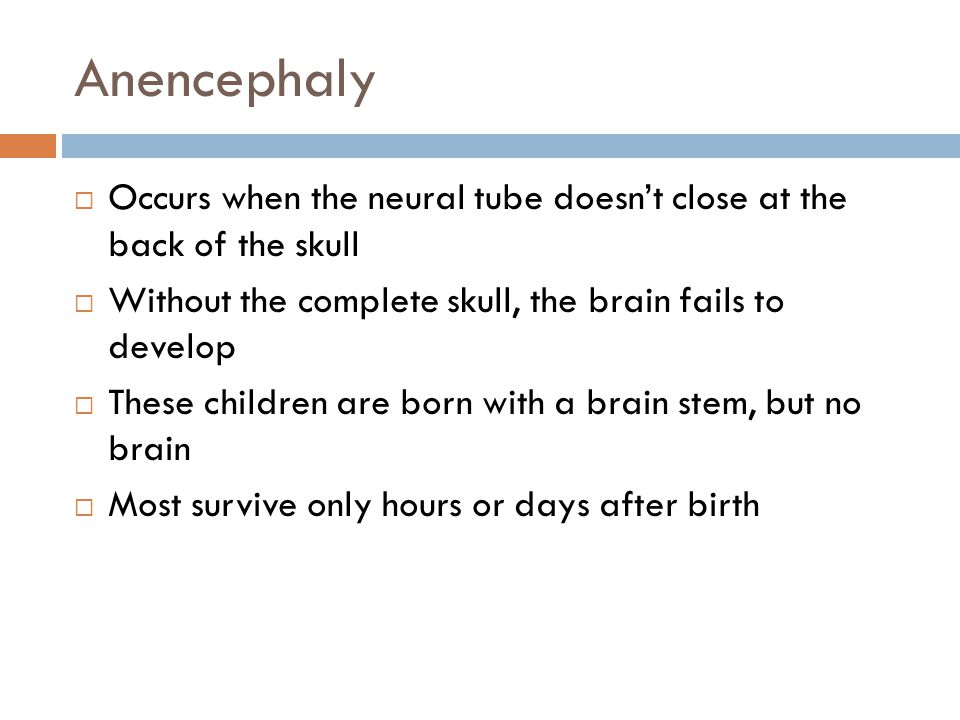 Anencephaly Occurs when the neural tube doesn't close at the back of the skull. Without the complete skull, the brain fails to develop.