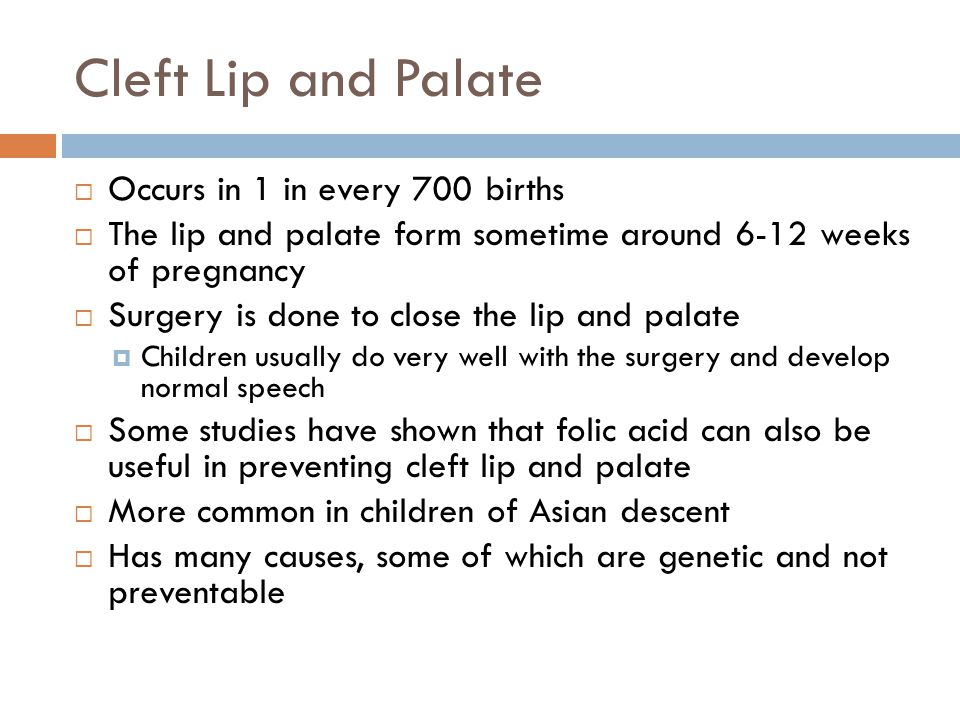 Cleft Lip and Palate Occurs in 1 in every 700 births