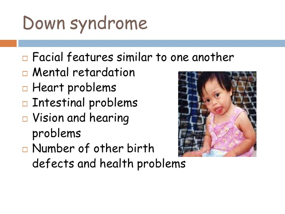 Down syndrome Facial features similar to one another