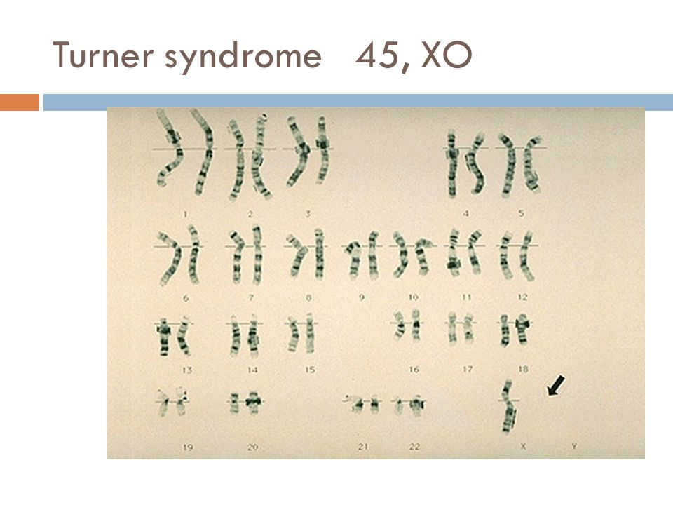 Turner syndrome 45, XO