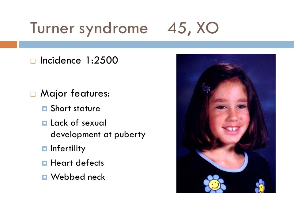 Turner syndrome 45, XO Incidence 1:2500 Major features: Short stature