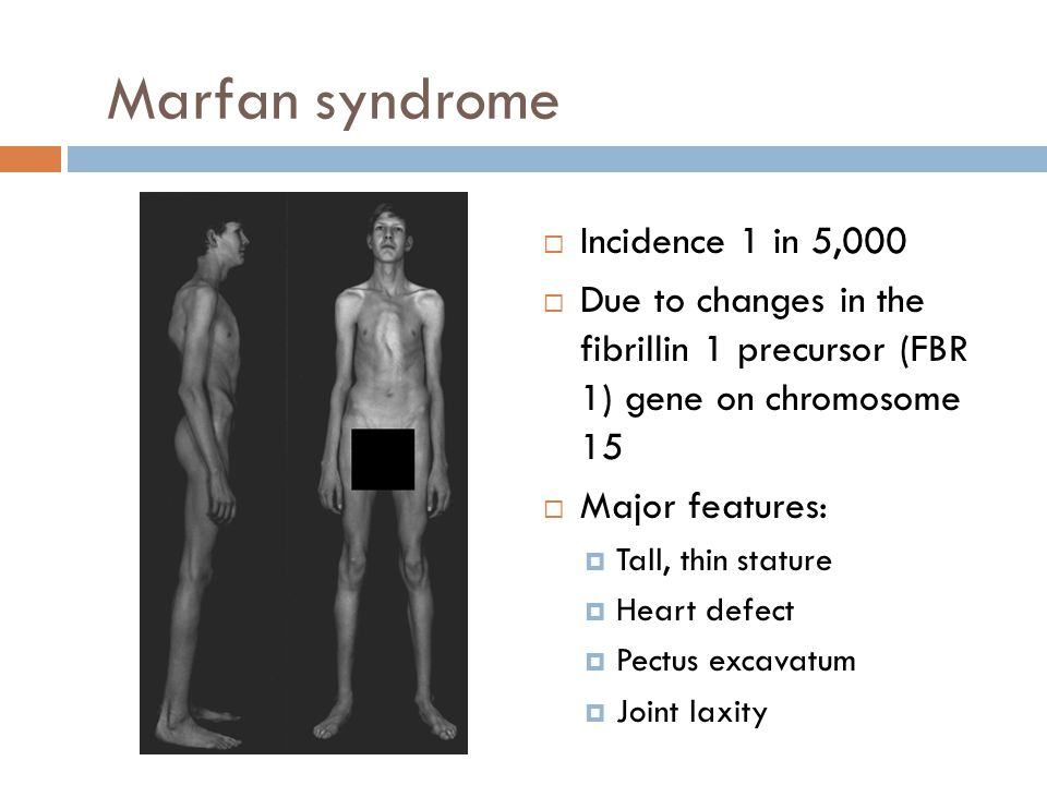Marfan syndrome Incidence 1 in 5,000