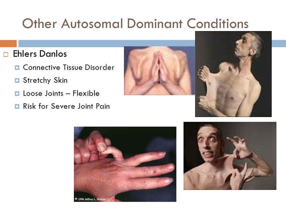 Other Autosomal Dominant Conditions