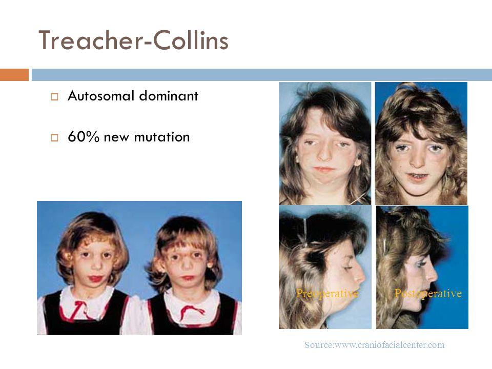 Treacher-Collins Autosomal dominant 60% new mutation Preoperative