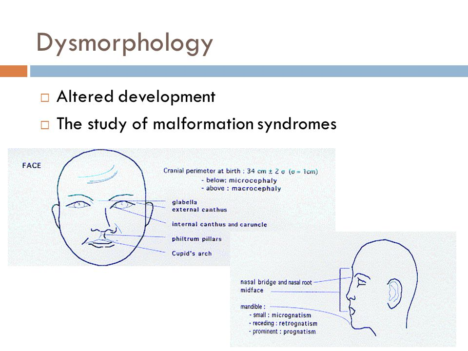 Dysmorphology Altered development The study of malformation syndromes