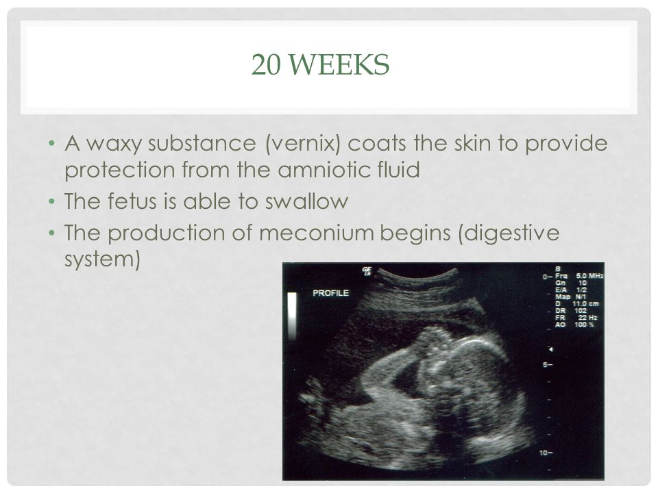 20 weeks A waxy substance (vernix) coats the skin to provide protection from the amniotic fluid. The fetus is able to swallow.