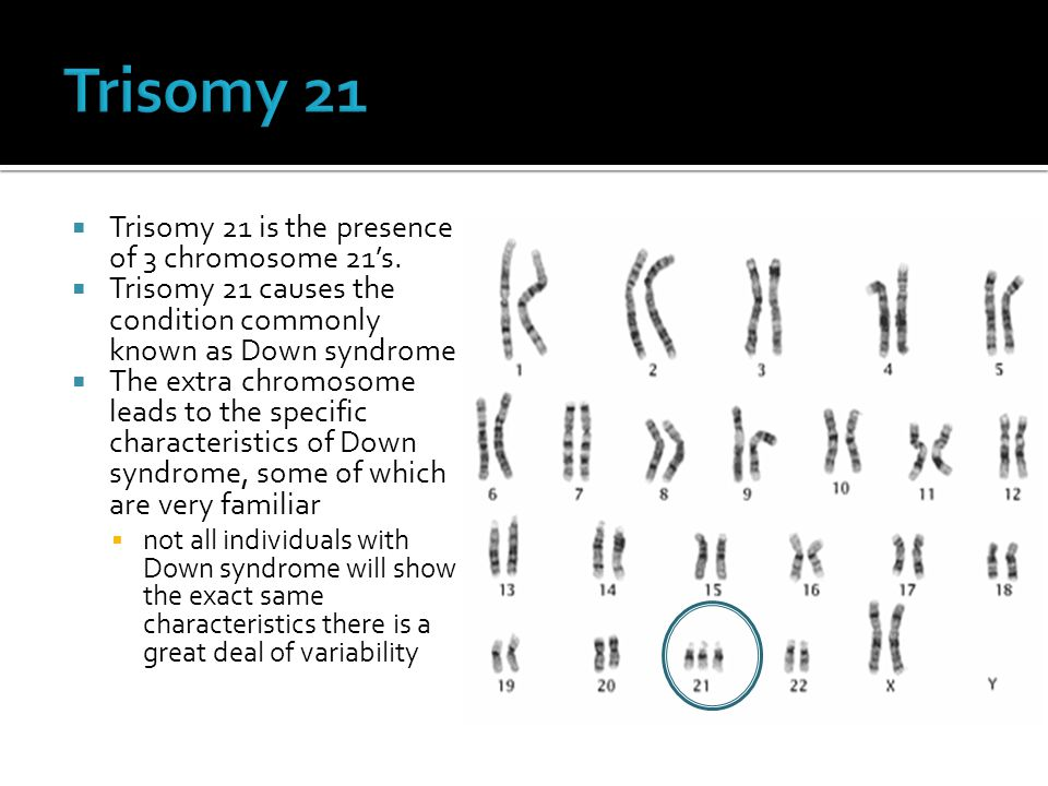 Trisomy 21 Trisomy 21 is the presence of 3 chromosome 21's.