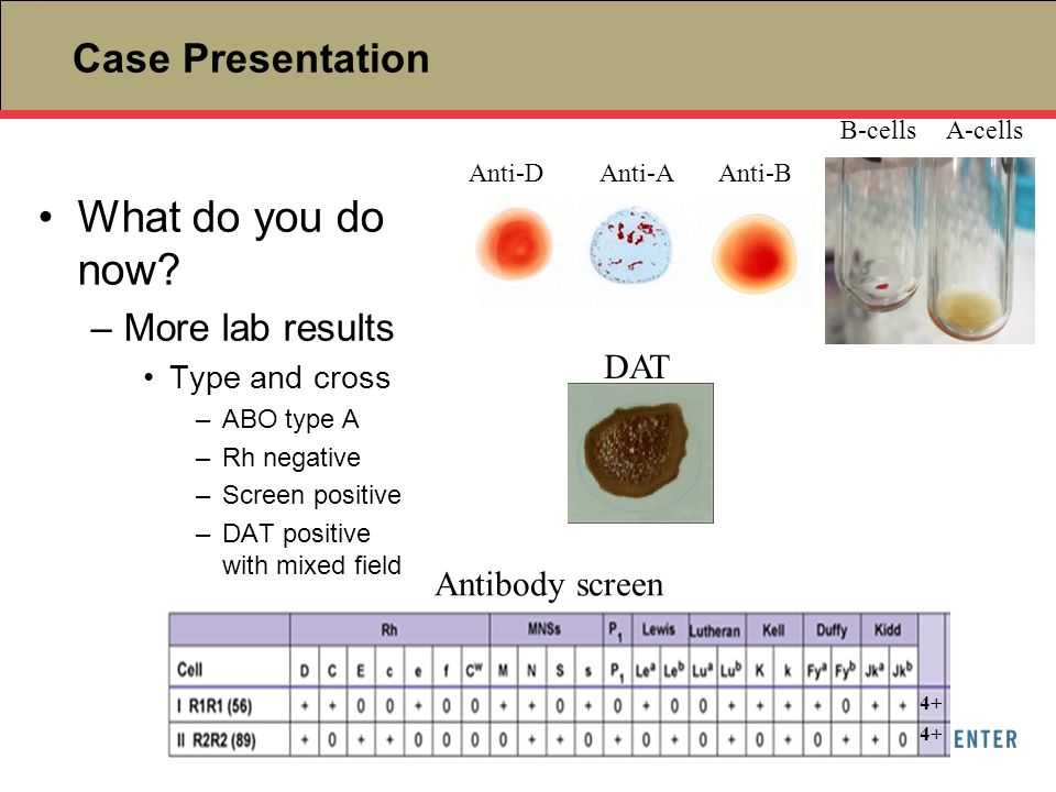 What do you do now Case Presentation More lab results DAT