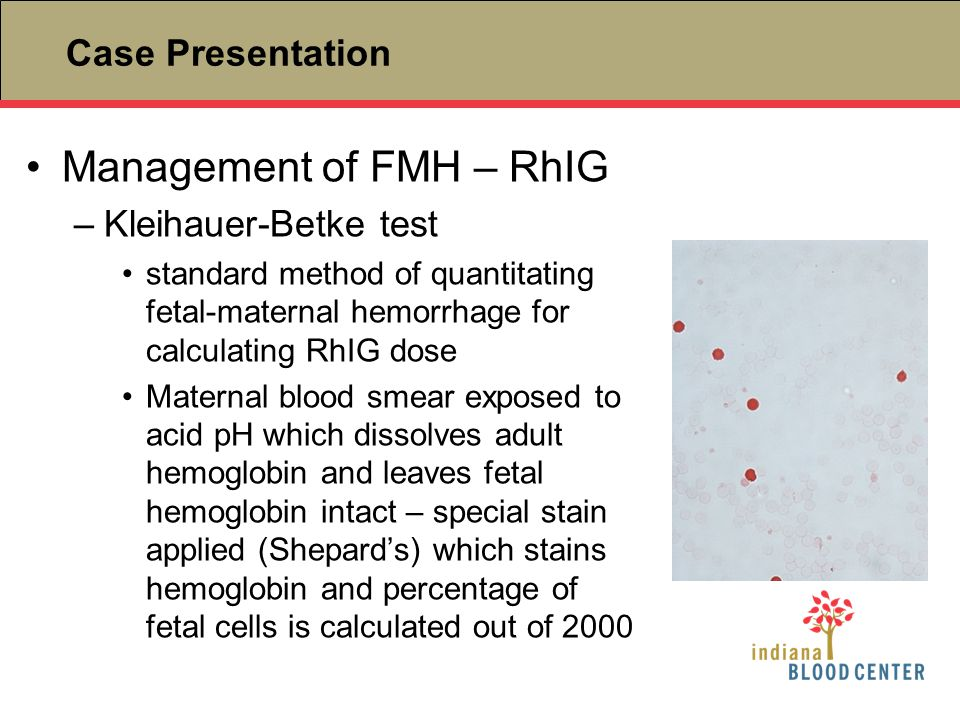 Management of FMH – RhIG