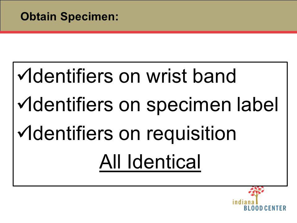 Identifiers on wrist band Identifiers on specimen label