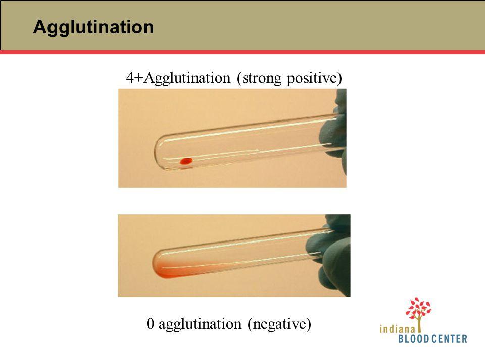 Agglutination 4+Agglutination (strong positive)
