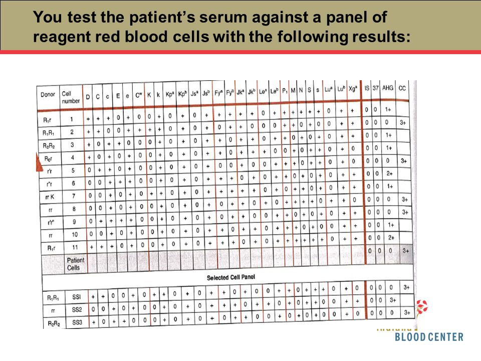 You test the patient's serum against a panel of reagent red blood cells with the following results: