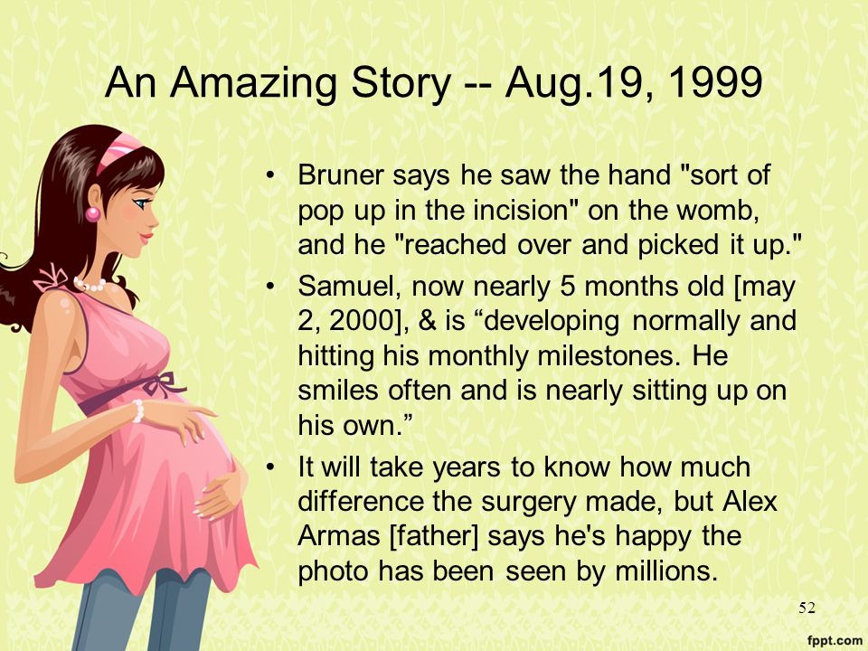 An Amazing Story -- Aug.19, 1999 Bruner says he saw the hand sort of pop up in the incision on the womb, and he reached over and picked it up.