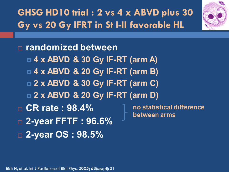 GHSG HD10 trial : 2 vs 4 x ABVD plus 30 Gy vs 20 Gy IFRT in St I-II favorable HL