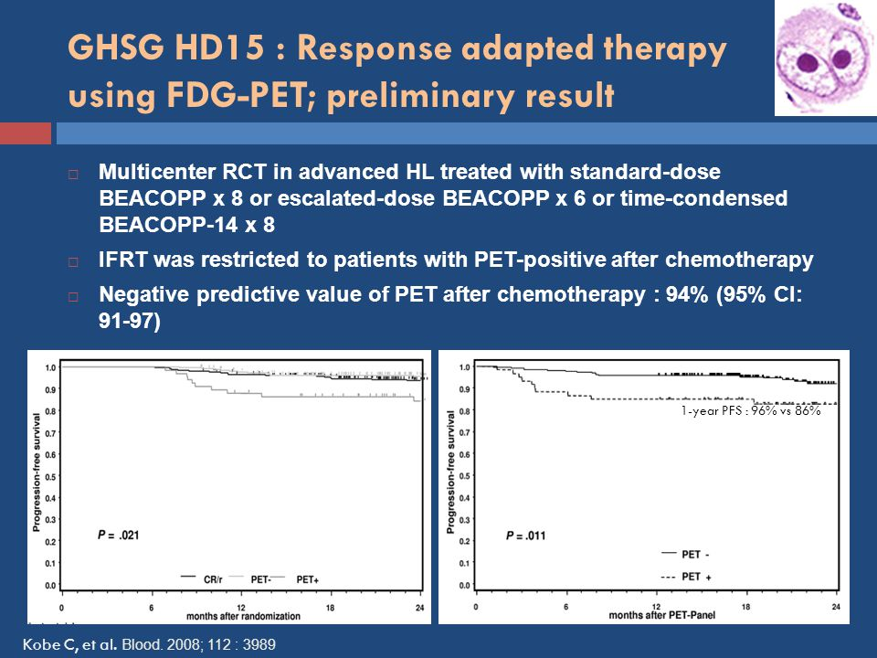 GHSG HD15 : Response adapted therapy using FDG-PET; preliminary result