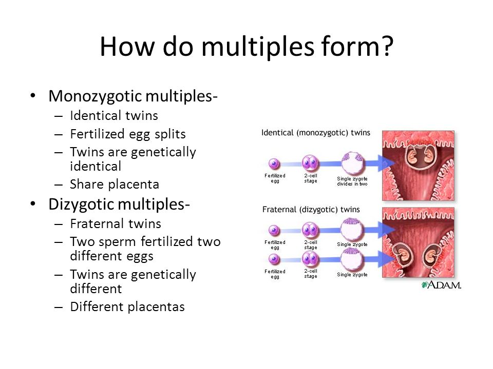 How do multiples form Monozygotic multiples- Dizygotic multiples-