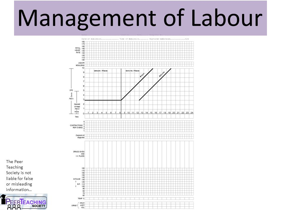 Management of Labour The Peer Teaching Society is not liable for false or misleading information…