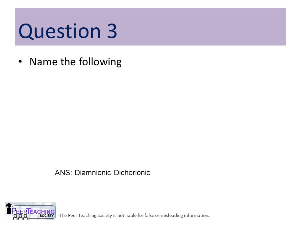 Question 3 Name the following ANS: Diamnionic Dichorionic