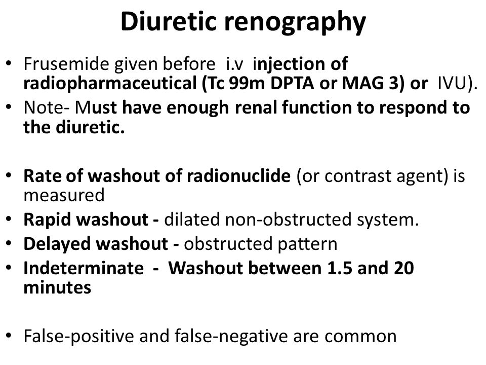 Diuretic renography Frusemide given before i.v injection of radiopharmaceutical (Tc 99m DPTA or MAG 3) or IVU).