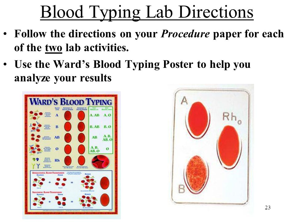 Blood Typing Lab Directions