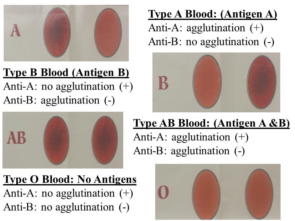 Type A Blood: (Antigen A)