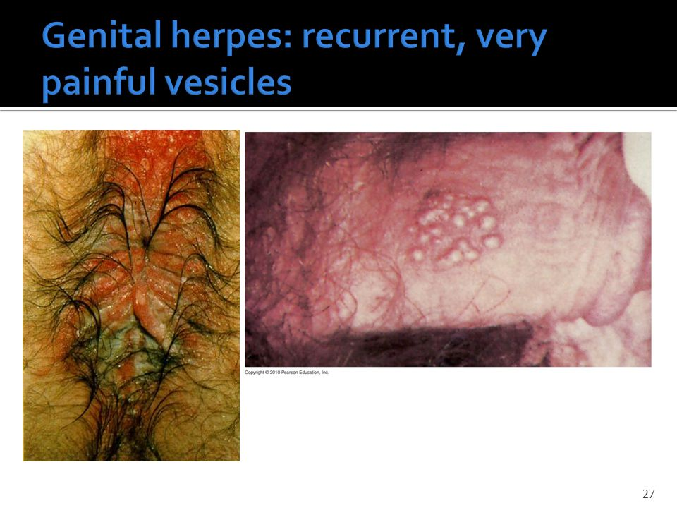 Genital herpes: recurrent, very painful vesicles