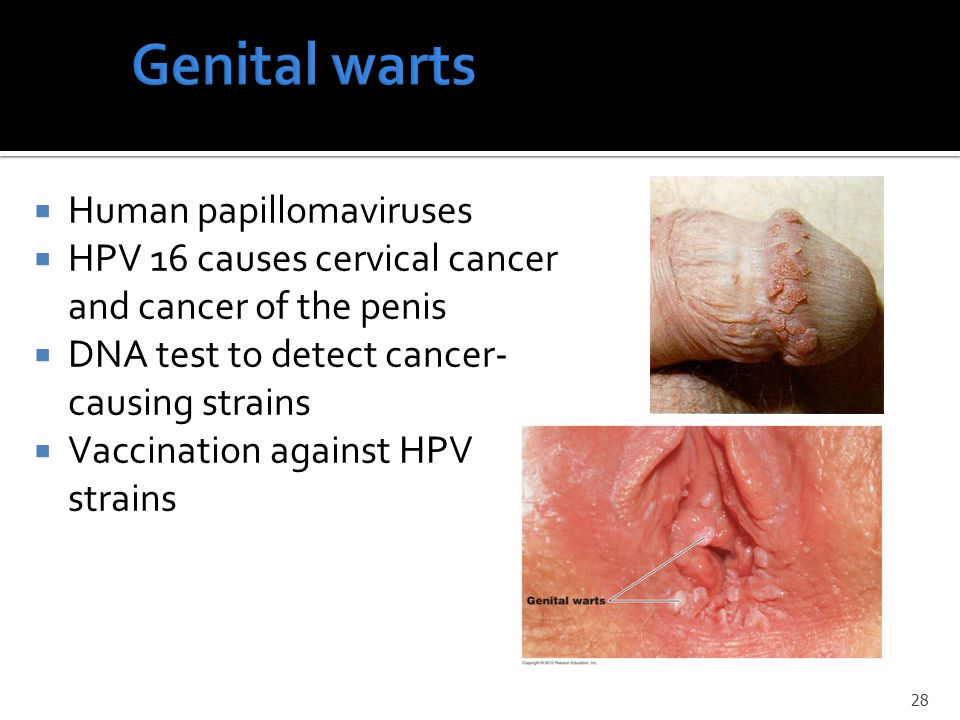 Genital warts Human papillomaviruses